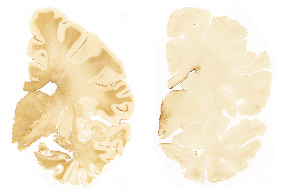 How Cte Chronic Traumatic >> Cte May Occur Without Concussions Bostonia Bu Alumni Magazine