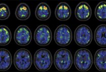 these images show areas of the brain where an experimental brain scan detected higher abnormal tau protein in a group of former NFL football players than compared to a group of control subjects. The former football players in the study have self-reported cognitive, mood, and behavior symptoms that are thought to be associated with CTE