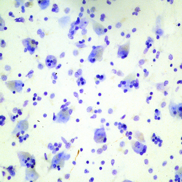 Microscopic section from 65 year old control subject showing no tau protein deposition.