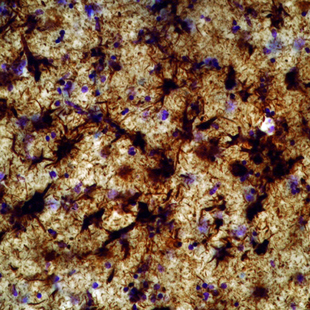 Microscopic section from a 73 year old world champion boxer with severe dementia showing very severe tau protein deposition in the amygdala and thalamus.