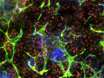 Liver-like tissue formation in human-induced pluripotent stem cells. The research team's robotic approach to engineering living cells could lead to technologies that transform human stem cells into tissues and organs for transplantation or drug design. (Image courtesy of the Weiss Lab, MIT)