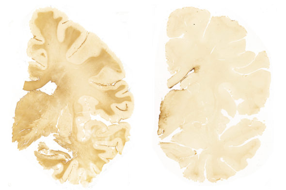 CTE-caused-by-brain-injury