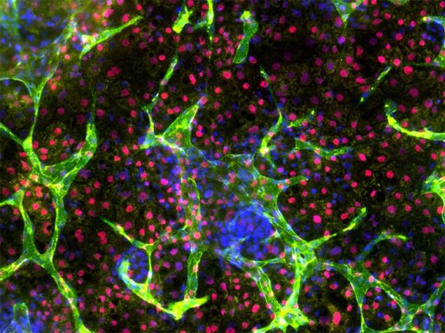 Liver-like tissue formation in human-induced pluripotent stem cells. The research team's robotic approach to engineering living cells could lead to technologies that transform human stem cells into tissues and organs for transplantation or drug design.