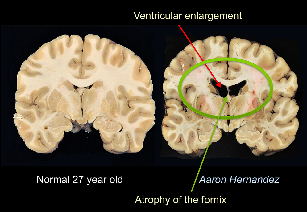 Scientific figure showing images of CTE in Aaron Hernandez's brain compared to a normal 27 year old brain