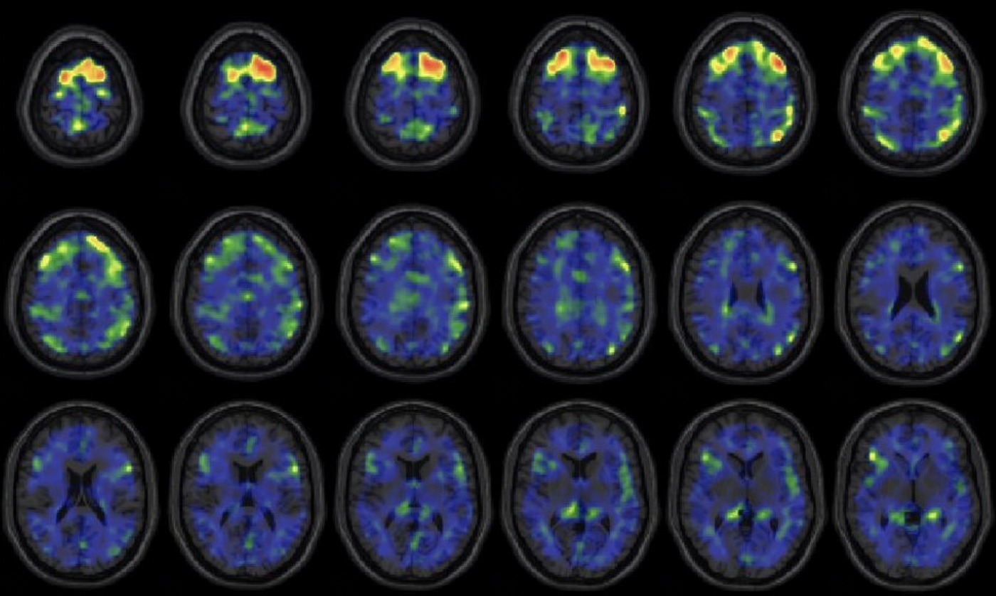 These images show areas of the brain where an experimental brain scan detected higher abnormal tau protein in a group of former NFL football players than compared to a group of a control subjects. The former football players in the study have self reported cognitive, mood and behavior symptoms that are thought to be associated with CTE. Courtesy of the New England Journal of Medicine