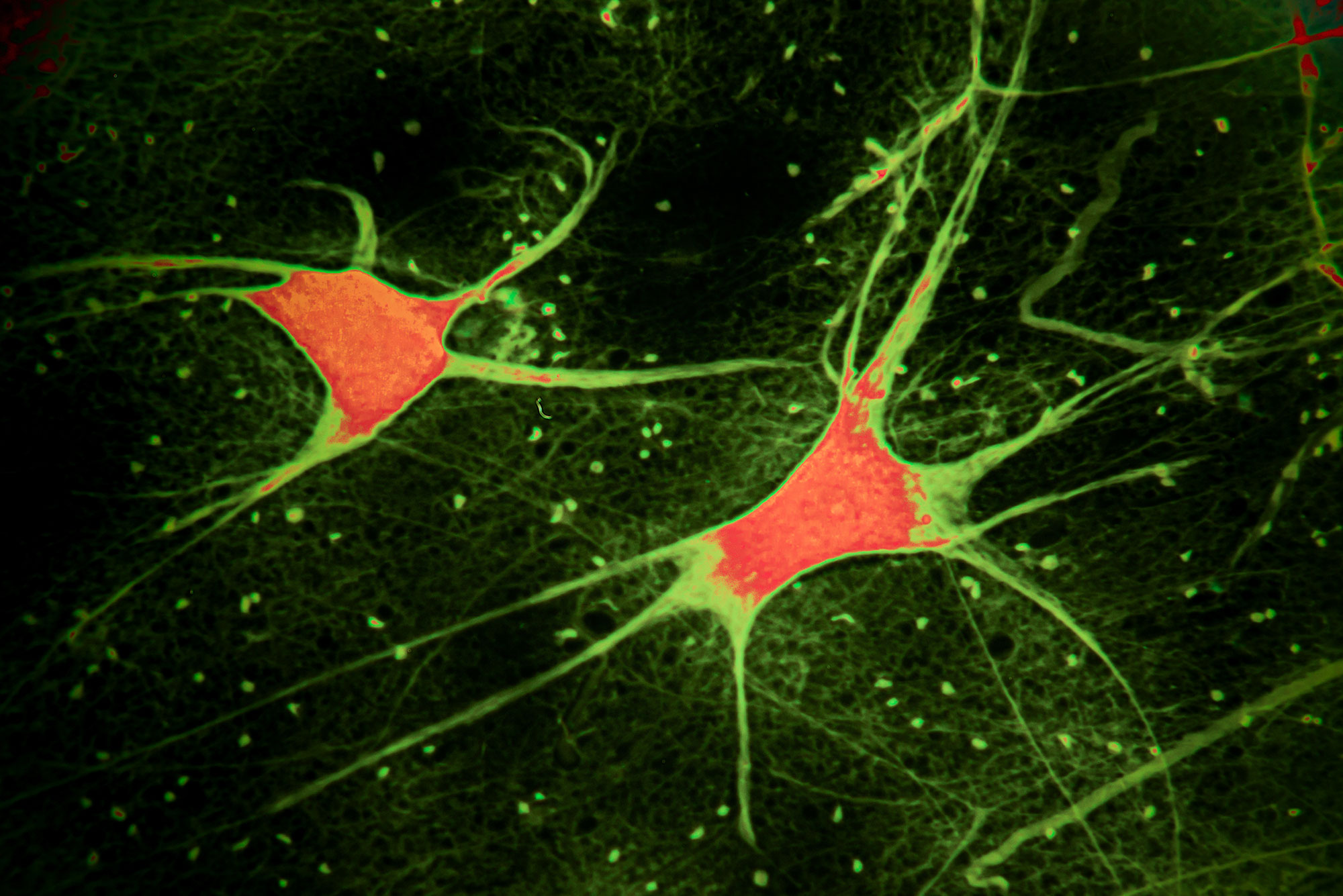 illustration of electrically active brain cells and neurons