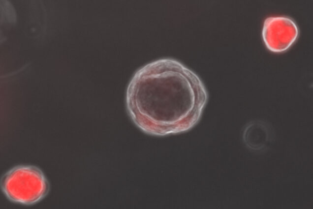 An image of red organoids on a gray background