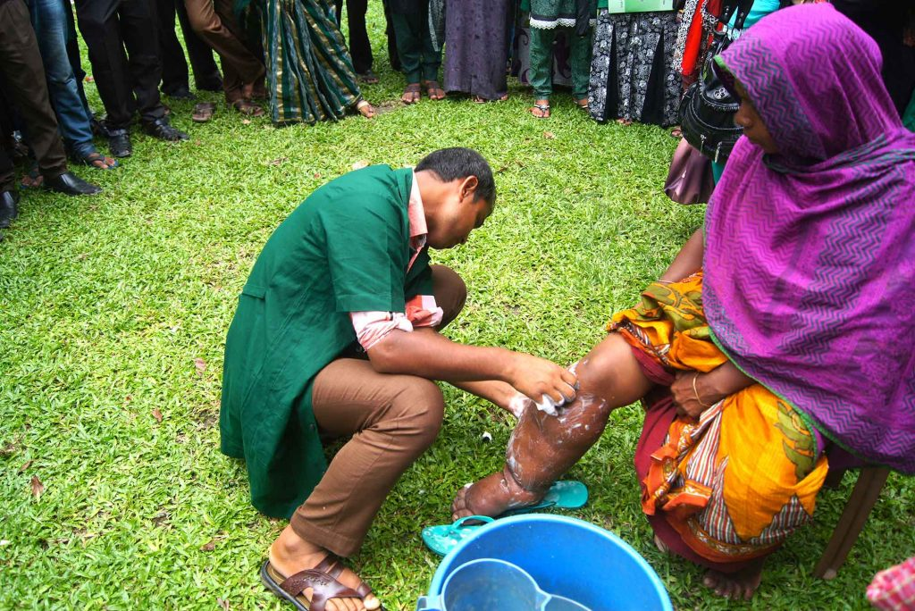 Lymphatic filariasis is preventable. When left unchecked, however, it can lead to painful—and permanent—hardening and swelling in the body, often in the legs.