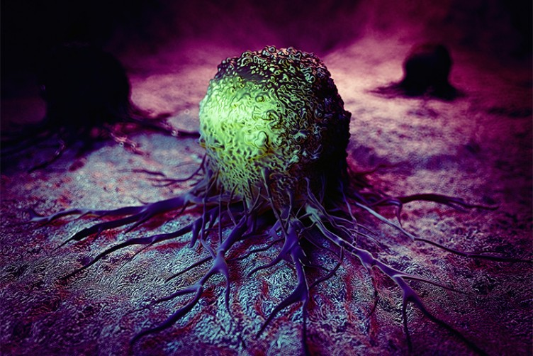Medical illustration of cancer cell and tumor