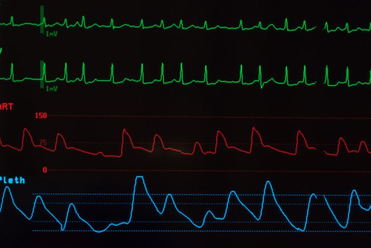 Close Up of Monitor Showing Atrial Fibrillation