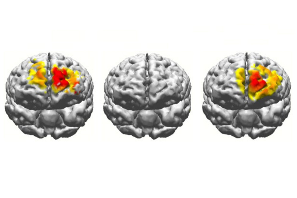 Graphic illustration showing 3 brain scans comparing the brain activity of a 20 year old, a 70 year old, and a 70 year old having undergone electrostimulation.