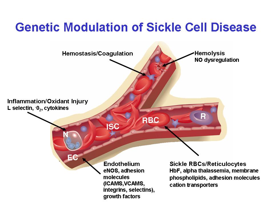 Research » Center of Excellence in Sickle Cell Disease » Boston ...